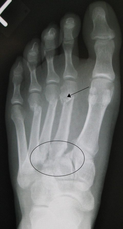 Lisfranc Injury