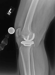 Unicompartmental (partial) knee replacement