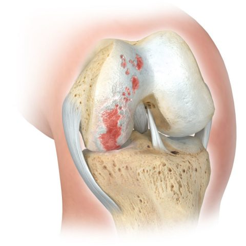 Partial (unicompartmental) Knee Osteoarthritis