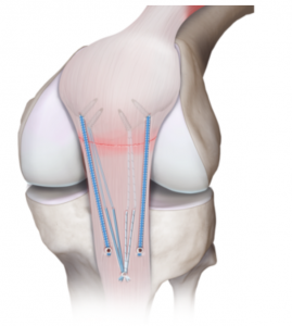 Patella Tendon Tear