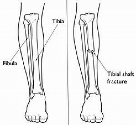 Tibial Shaft Fractures