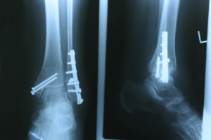 Open reduction internal fixation of the distal fibula