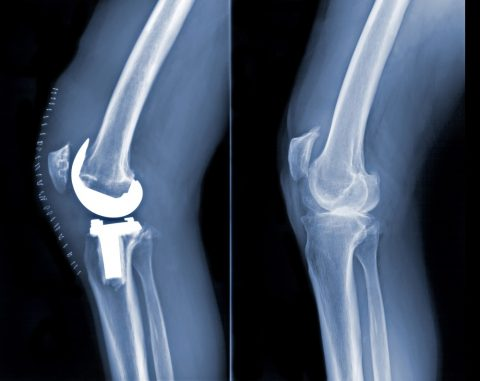 Tri-compartmental (complete) Osteoarthritis of the Knee