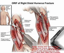Distal Humerus Fracture