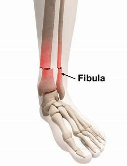 Open Reduction Internal Fixation of Distal Fibula