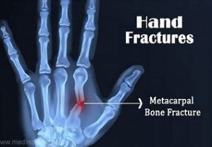 Hand Fracture 1