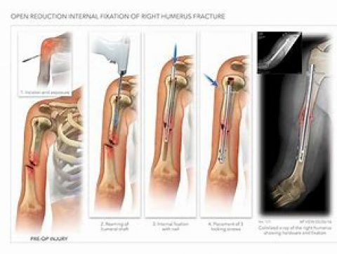 Proximal Humerus Fracture Operative Fixation