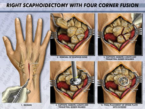 Scaphoid Lunate Advanced Collapse Surgery