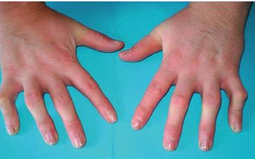 Proximal Interphalangeal Joint Flexion Contracture