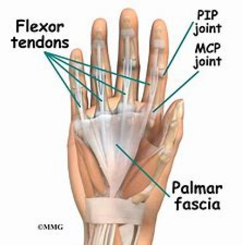 Proximal Interphalangeal Joint Flexion Contracture Treatment