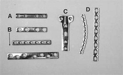 Plate and Screw Fixation