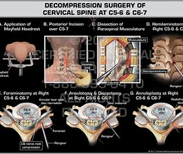 Cervical Decompression