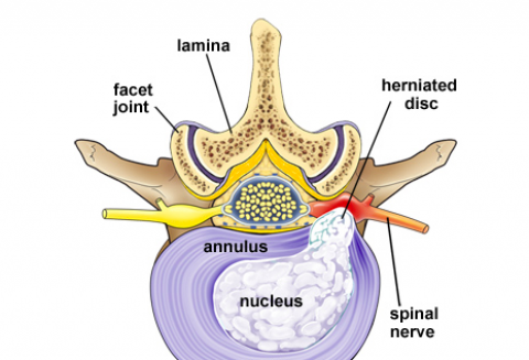 Herniated Vertebral Disc Excision Surgery