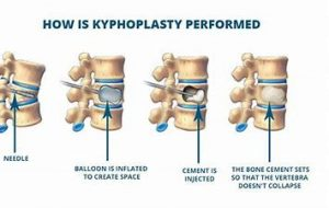 Vertical Kyphoplasty