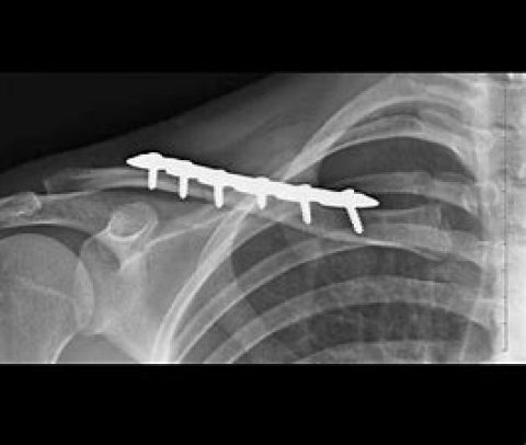 Clavicle Fracture Surgery