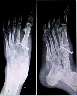 Foot fracture/Ligament Injury