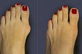 Bunion Deformity of Foot