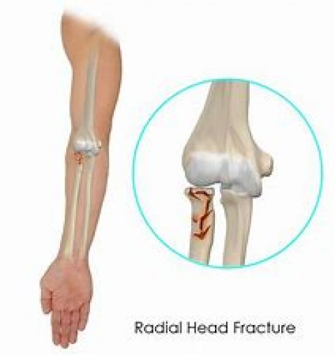 Radial Head Fracture Surgery
